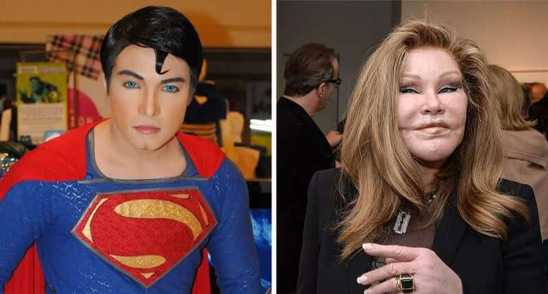 30+ People Who Took Plastic Surgery To The Extreme