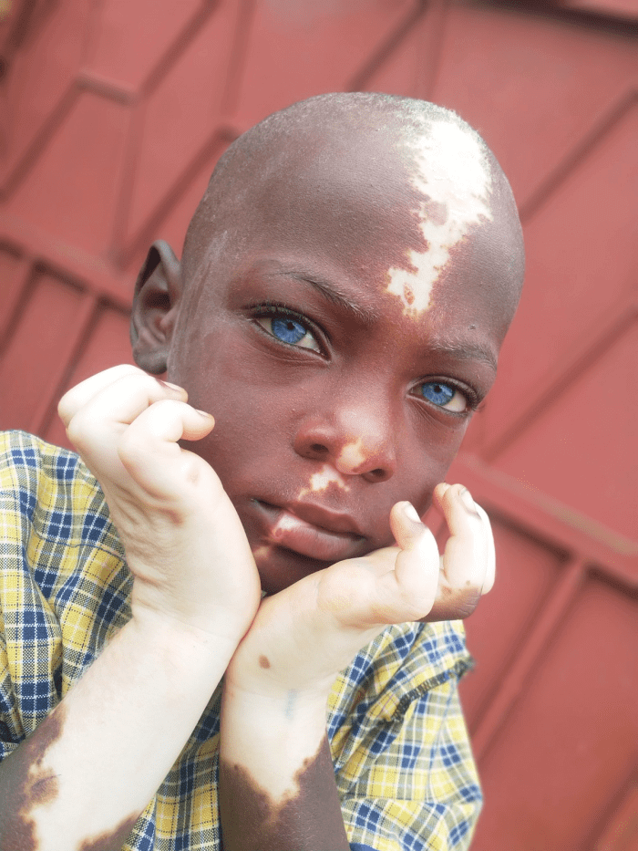 Um Menino Com Olhos Azuis E Vitiligo