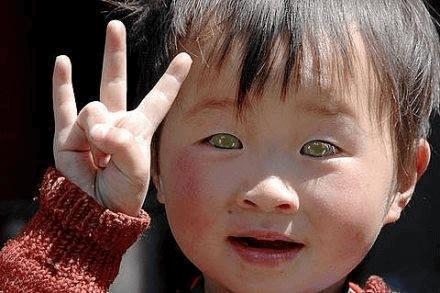 """Este Menino Da China Pode Ver No Escuro Com Seus """"Olhos De Gato"""""""