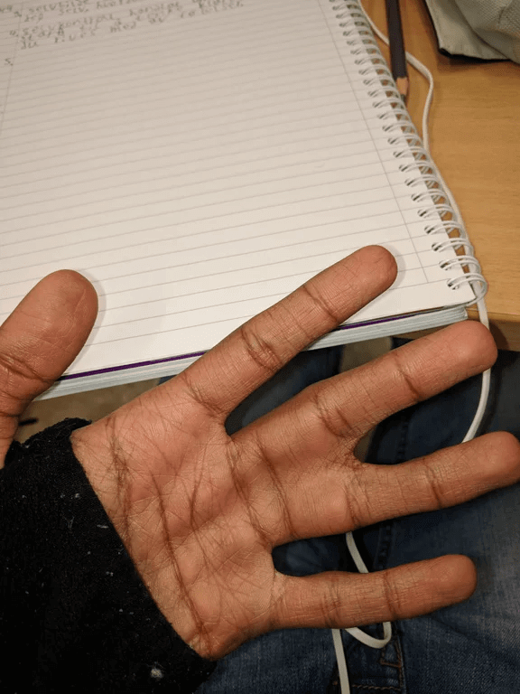 Esta Pessoa Nasceu Com Dedos Ligados