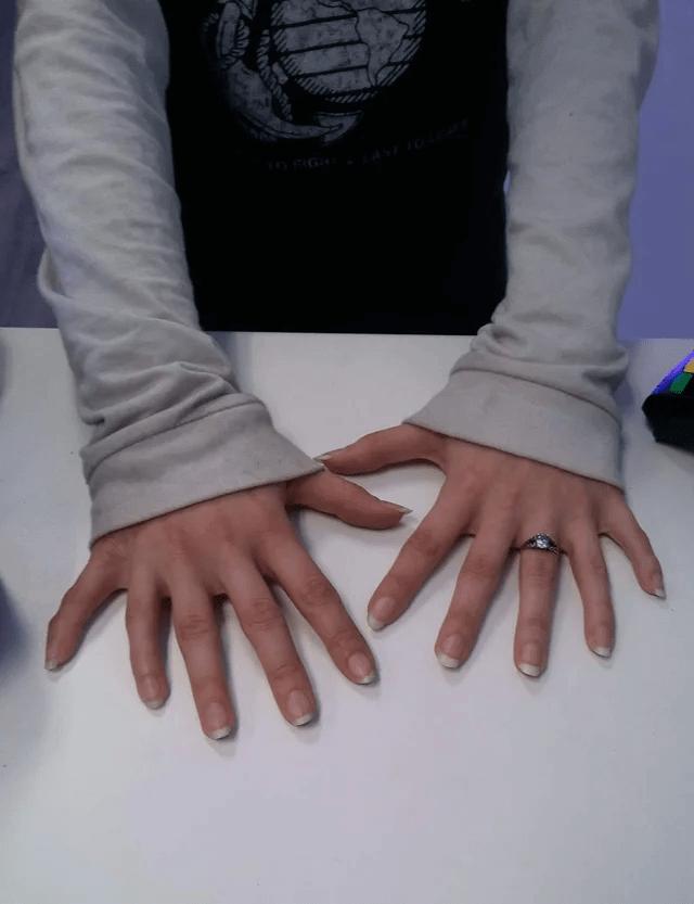 Esta Pessoa Tem Doze Dedos