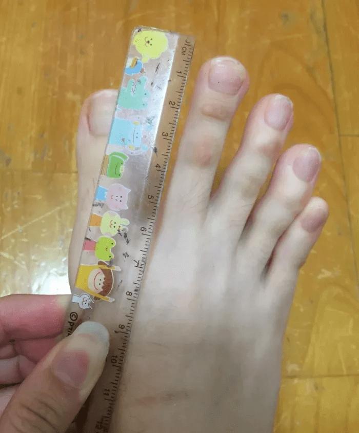 Esta Pessoa Tem Dedos Do Pé Que São Basicamente Do Tamanho Dos Seus Dedos Da Mão