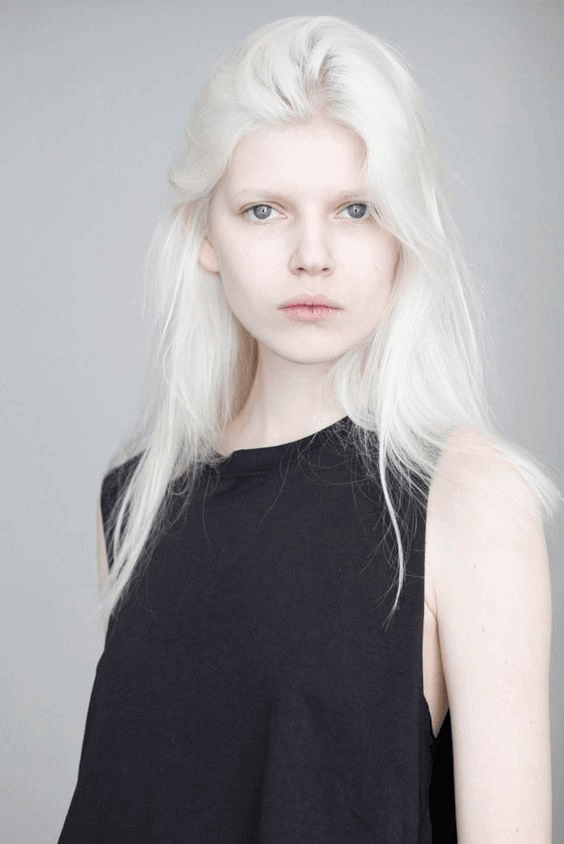 O Albinismo Desta Mulher É Inspirador