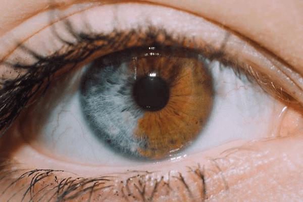 Um Olho Com Mais De Uma Cor