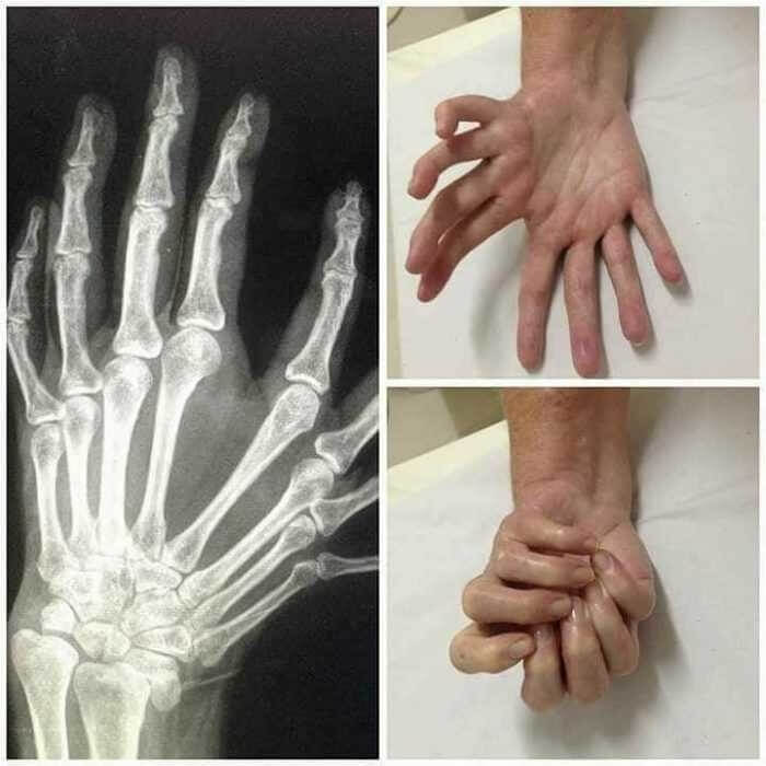 Esta Síndrome Da Mão Do Espelho Faz Com Que Pareça Que Duas Mãos Estão Se Segurando